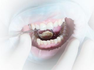 Кариес зубов что это? - Ответы на вопросы
