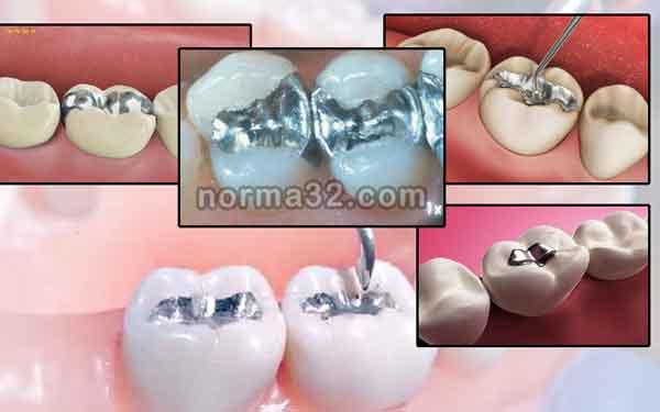 Амальгама стоматологический материал фото