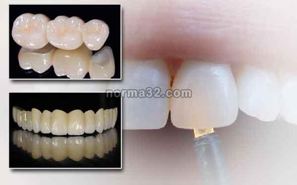 Цирконий как стоматологический материал фото
