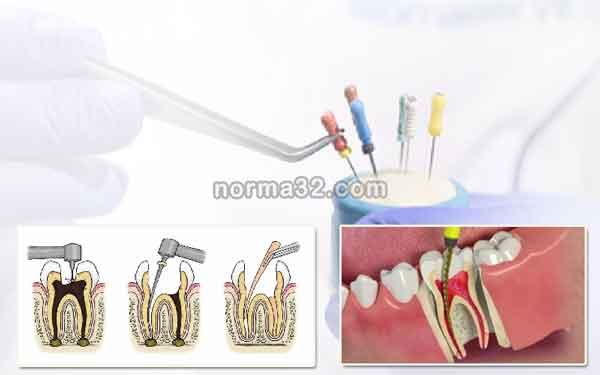 Эндодонтические материалы в стоматологии фото