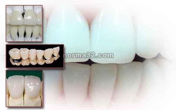 Керамика как стоматологический материал фото