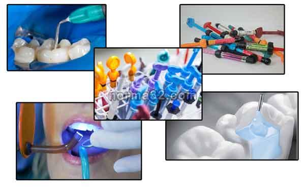 Композитные стоматологические материалы фото