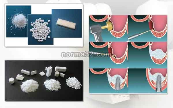 Материалы наполнения костной ткани в стоматологии фото