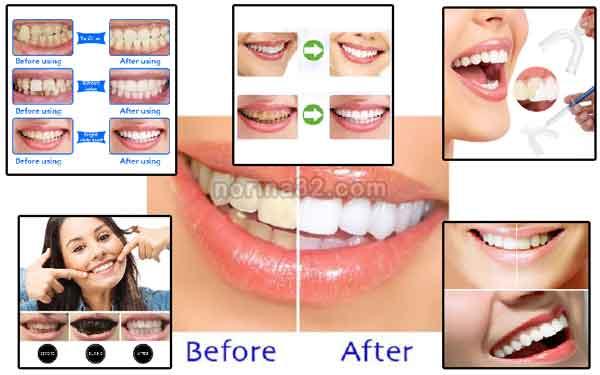 Стоматологические материалы для отбеливания зубов фото