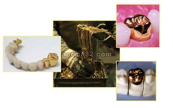 Золото как стоматологический материал фото